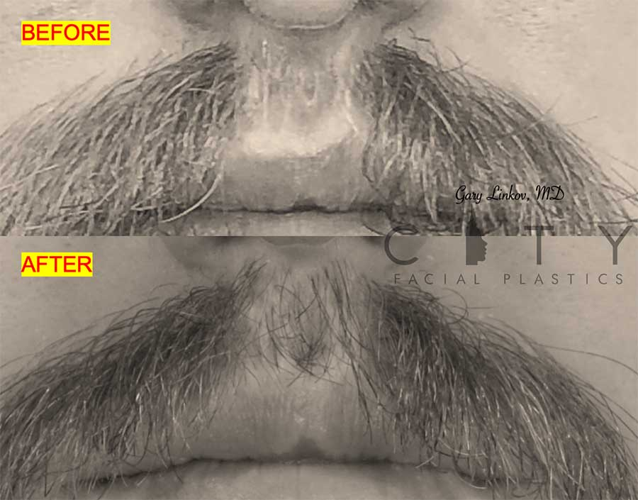 Hair transplant 2 mustache