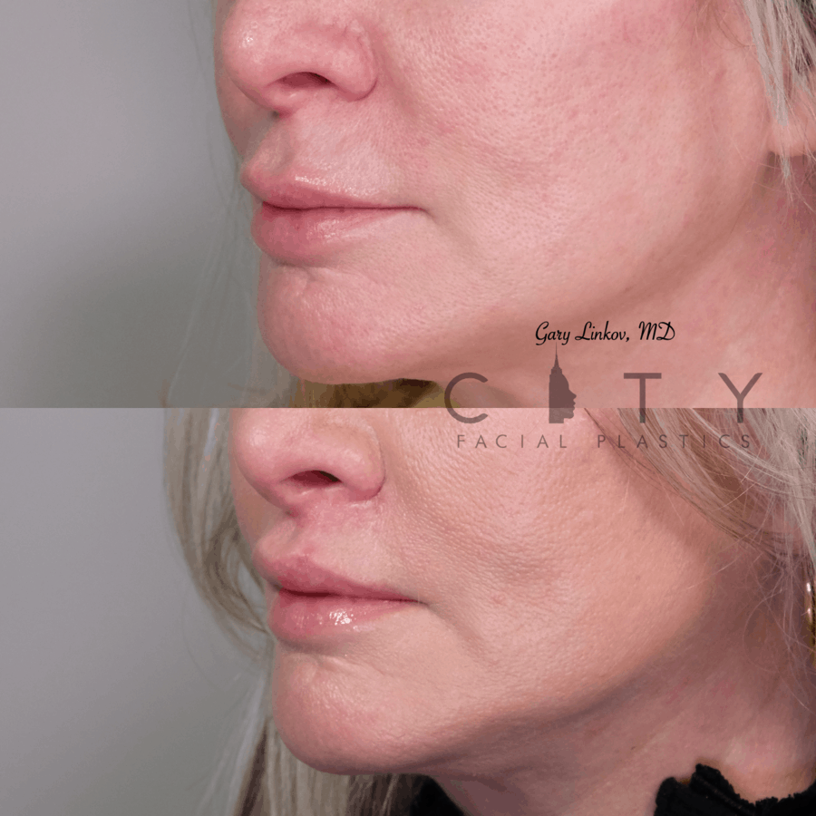 Lip lift 27 L three quarter