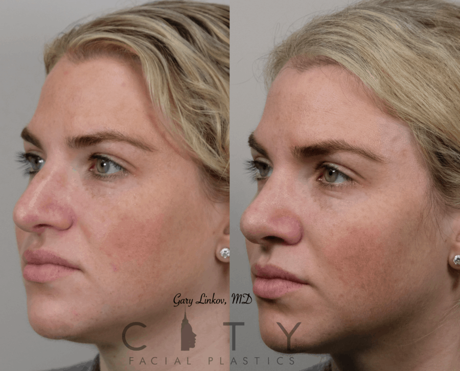 Nasal Surgery 10 L oblique
