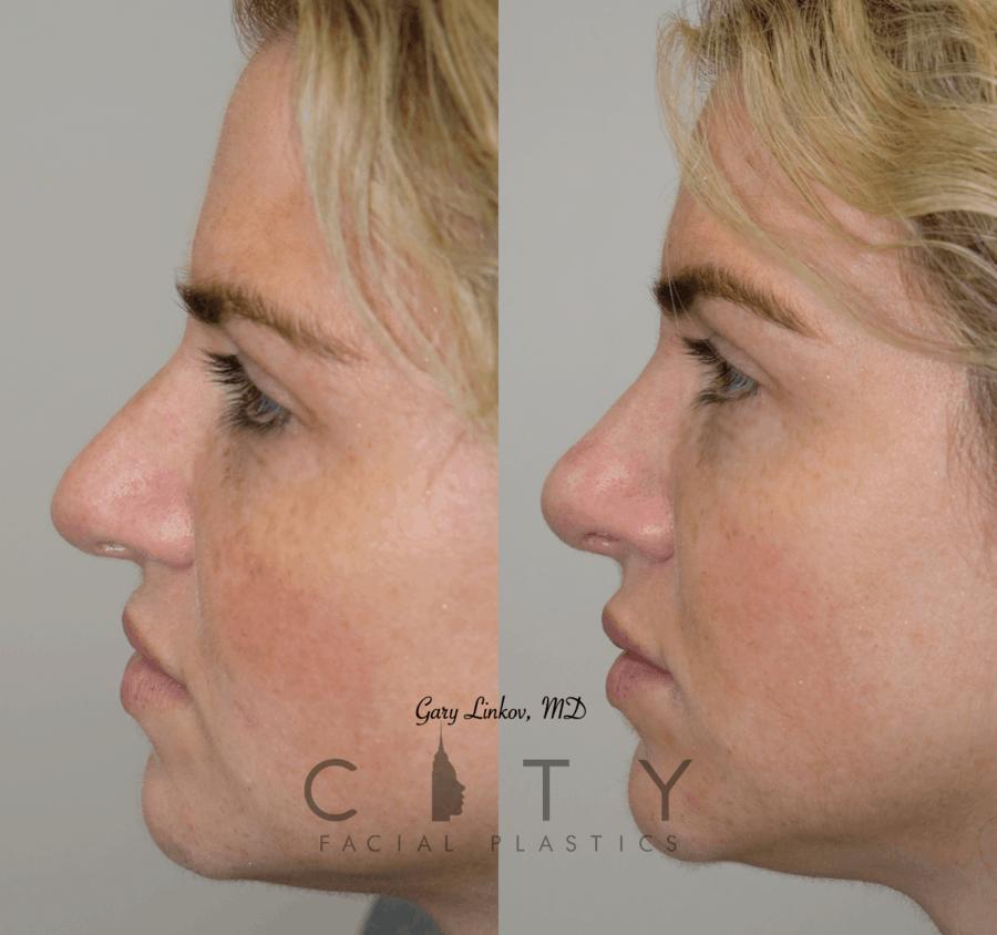 Nasal Surgery 10 L profile FLASH