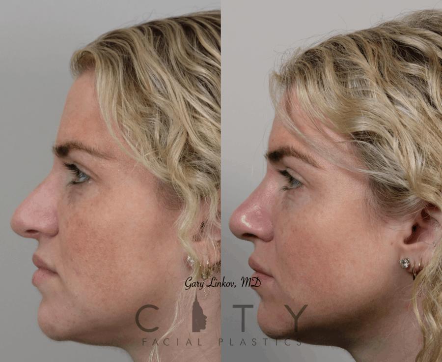 Nasal Surgery 10 L profile