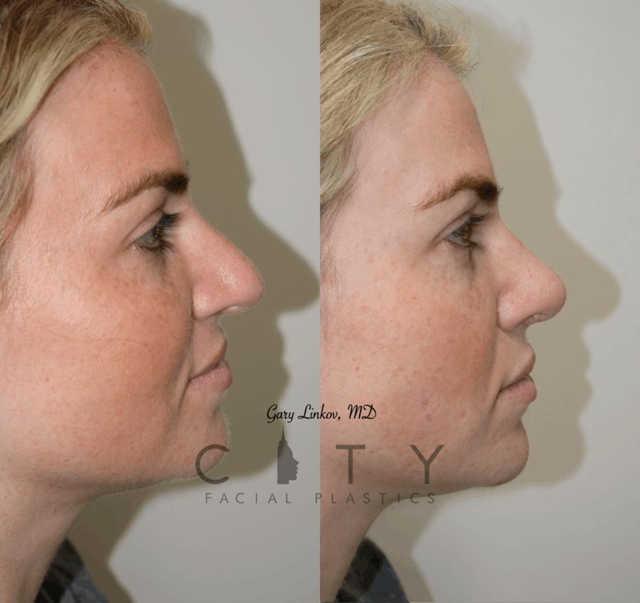 Nasal Surgery 10 R profile