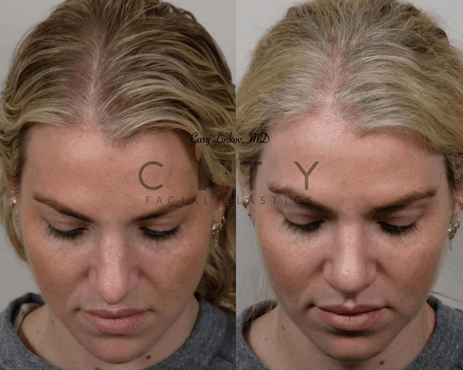 Nasal Surgery 10 frontal birds