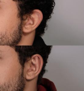 Otoplasty 2 left ear