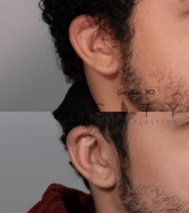 Otoplasty 2 right ear