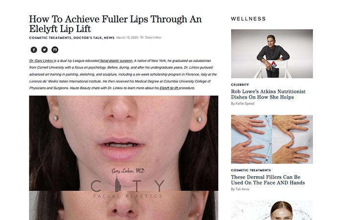 Screenshot of an article - How To Achieve Fuller Lips Through An Elelyft Lip Lift.