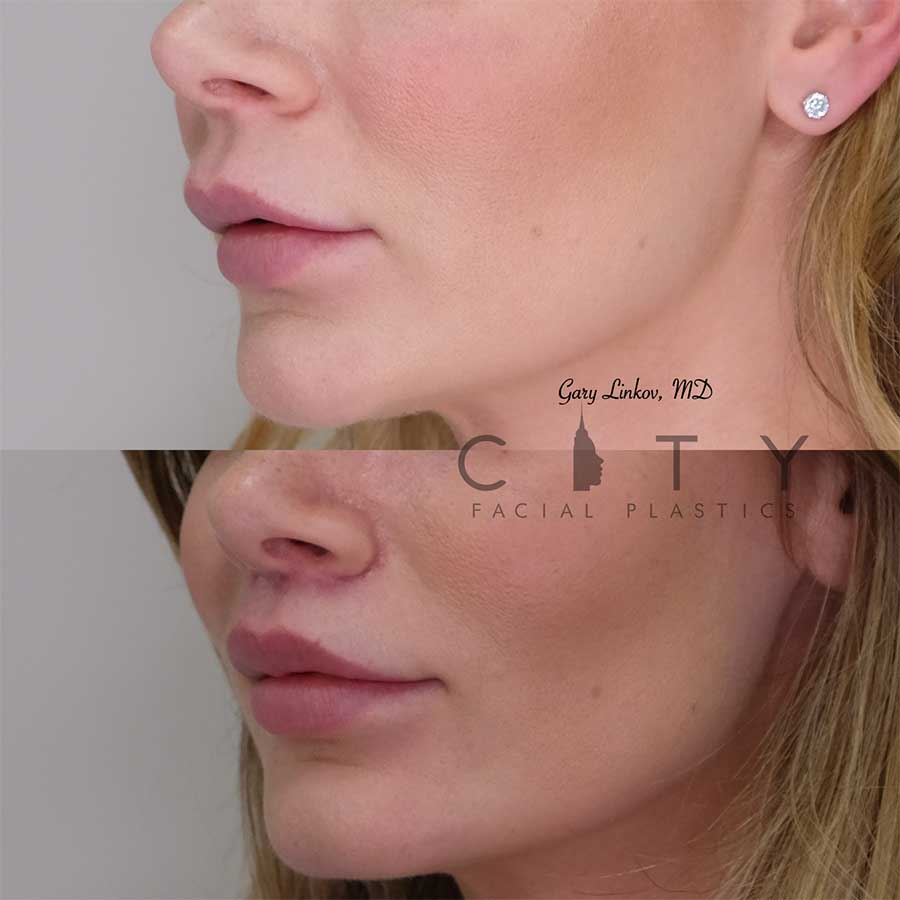 Bullhorn Lip Lift Case 1 | NYC Bullhorn Lip Lift Surgery, New York Upper Lip Enhancement