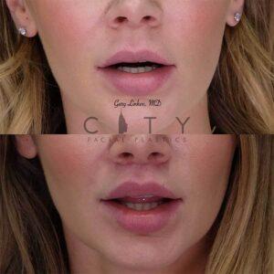 Bullhorn Lip Lift Case 1 | NYC Bullhorn Lip Lift Surgery, New York Upper Lip Enhancement