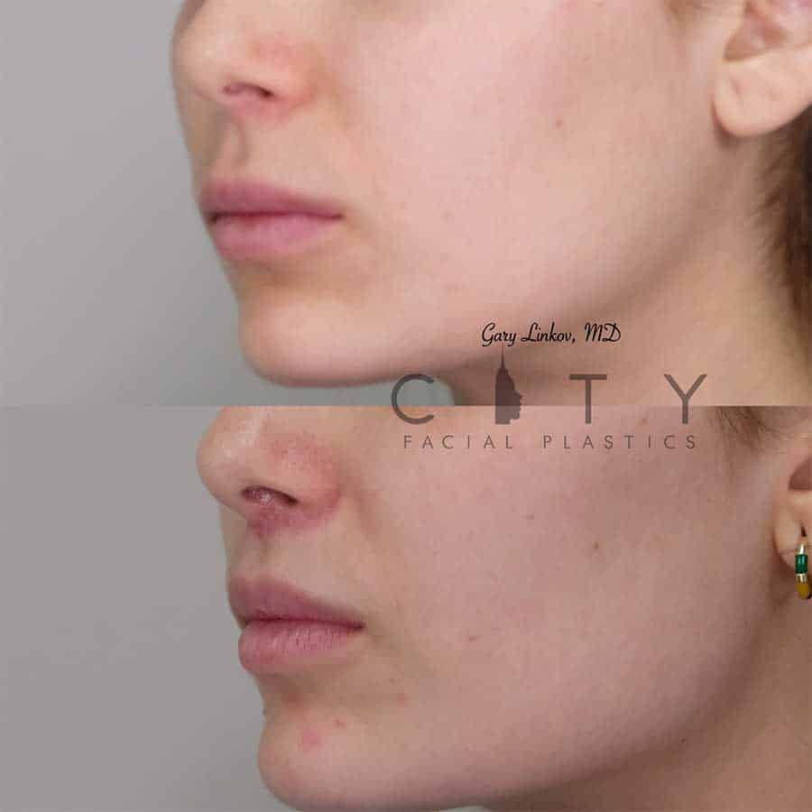 Bullhorn Lip Lift Case 3 | NYC Bullhorn Lip Lift Surgery, New York Upper Lip Enhancement