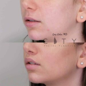 Bullhorn Lip Lift Case 4 | NYC Bullhorn Lip Lift Surgery, New York Upper Lip Enhancement