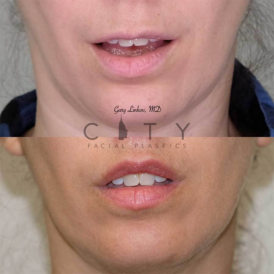 Bullhorn Lip Lift Case 5 | NYC Bullhorn Lip Lift Surgery, New York Upper Lip Enhancement