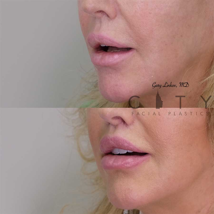 Bullhorn Lip Lift Case 6 | NYC Bullhorn Lip Lift Surgery, New York Upper Lip Enhancement