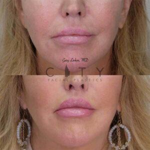 Bullhorn Lip Lift Case 6 | NYC Bullhorn Lip Lift Surgery, New York Upper Lip Enhancement