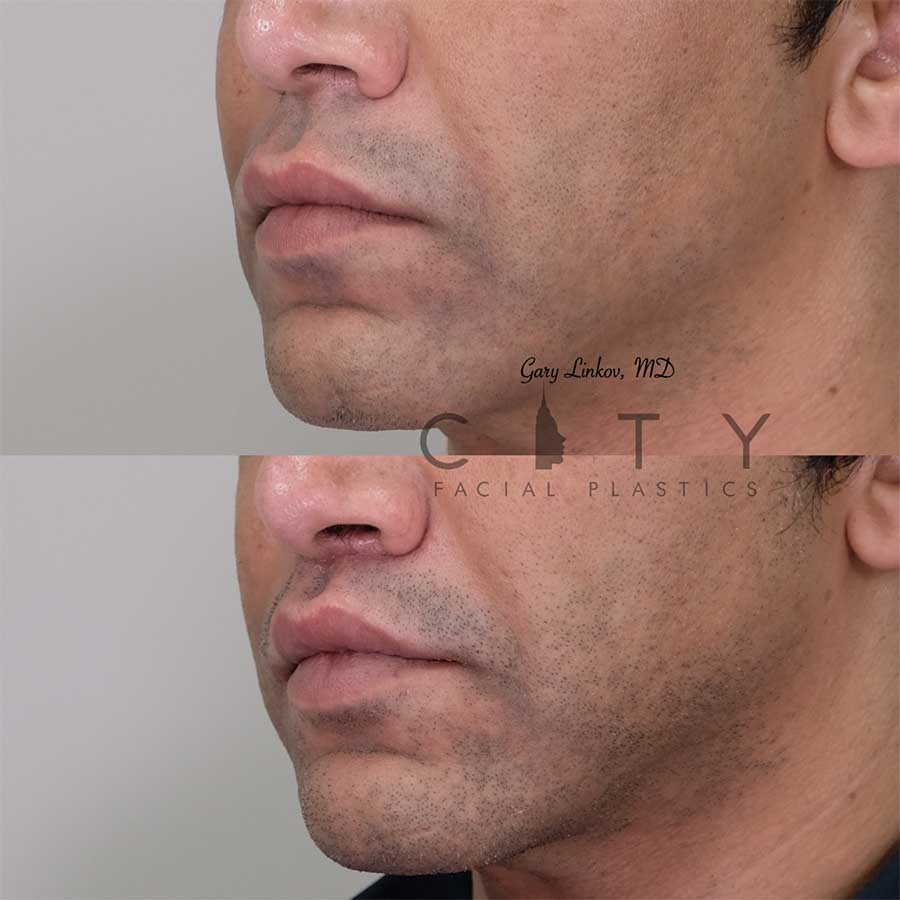 Bullhorn Lip Lift Case 7 | NYC Bullhorn Lip Lift Surgery, New York Upper Lip Enhancement