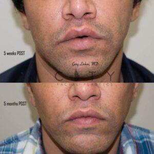 Bullhorn Lip Lift Case 7 | NYC Bullhorn Lip Lift Surgery, New York Upper Lip Enhancement