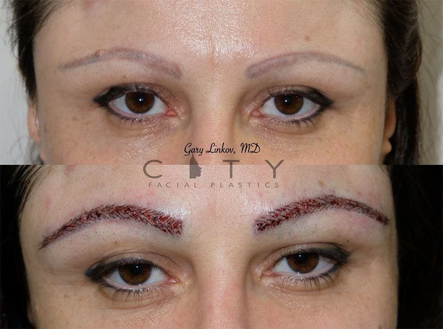Eyebrow Transplant | NYC Facial Plastic Surgery