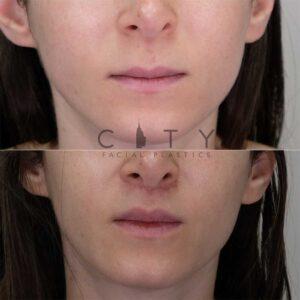 Lip Lift Case 10   NYC Lip Augmentation, New York Cosmetic Lip Plastic Surgery