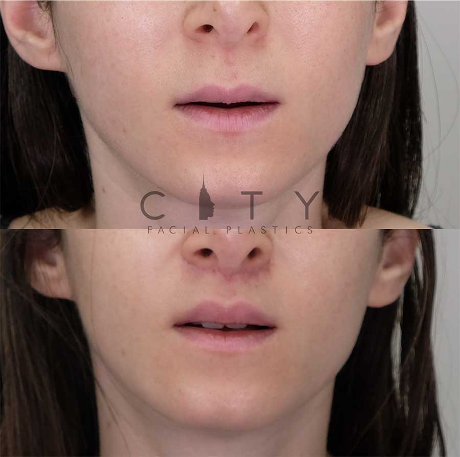 Lip Lift Case 10 | NYC Lip Augmentation, New York Cosmetic Lip Plastic Surgery