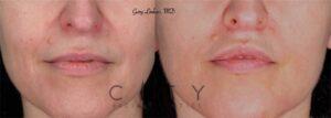 Lip Lift Case 2   NYC Lip Augmentation, New York Cosmetic Lip Plastic Surgery