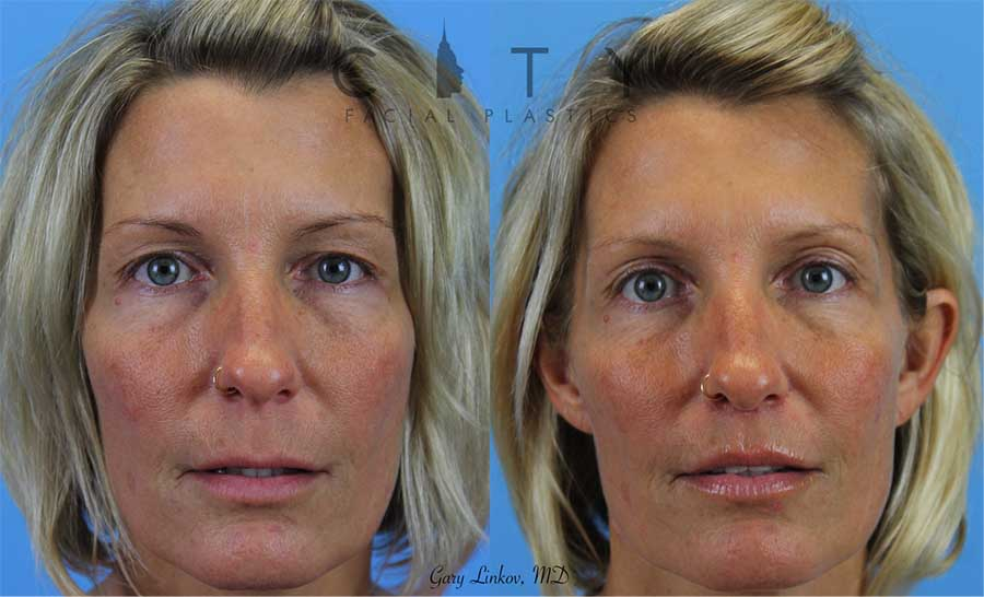 Lip Lift Case 3 | NYC Lip Augmentation, New York Cosmetic Lip Plastic Surgery