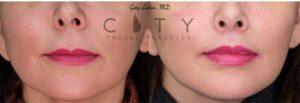 Lip Lift Case 4   NYC Lip Augmentation, New York Cosmetic Lip Plastic Surgery