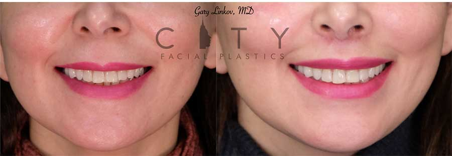 Lip Lift Case 4 | NYC Lip Augmentation, New York Cosmetic Lip Plastic Surgery