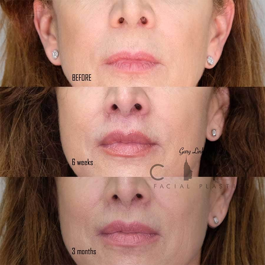 Lip Lift Case 5 | NYC Lip Augmentation, New York Cosmetic Lip Plastic Surgery
