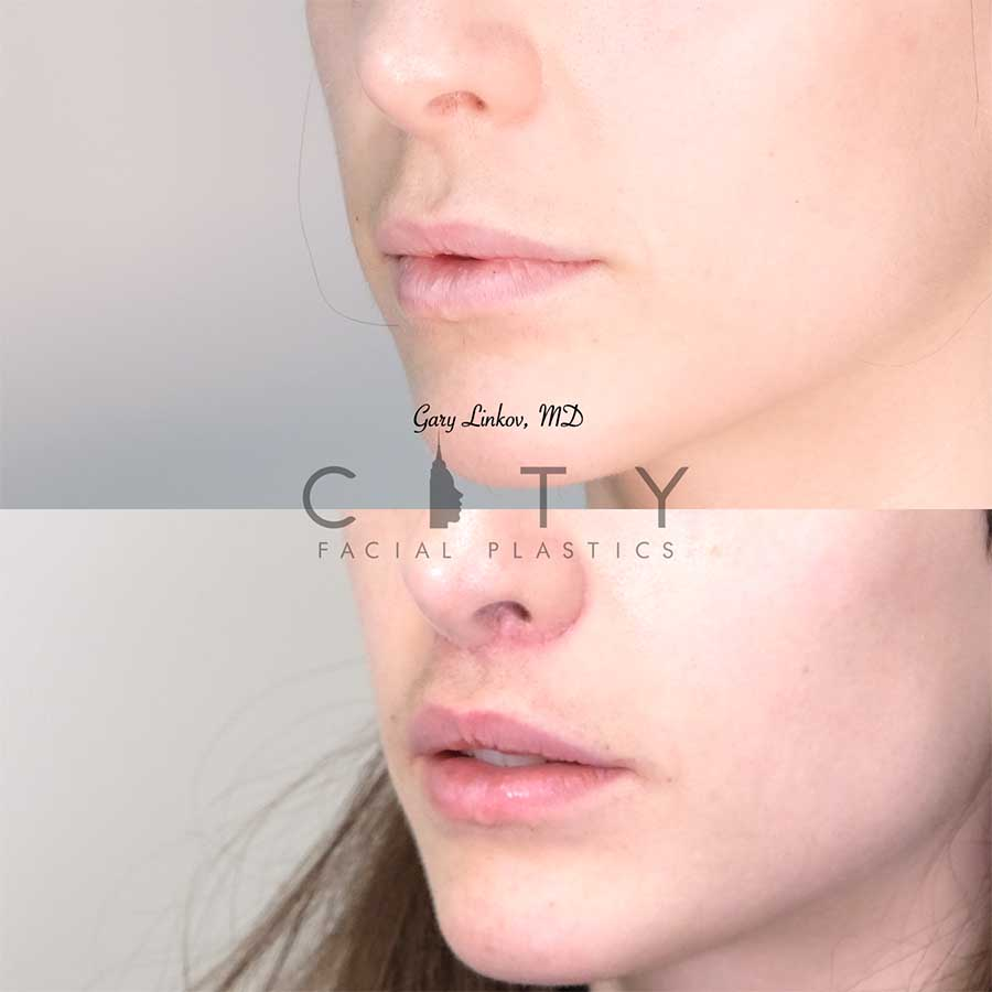 Lip Lift Case 6 | Lip Lift Case 6 | NYC Lip Augmentation, New York Cosmetic Lip Plastic Surgery