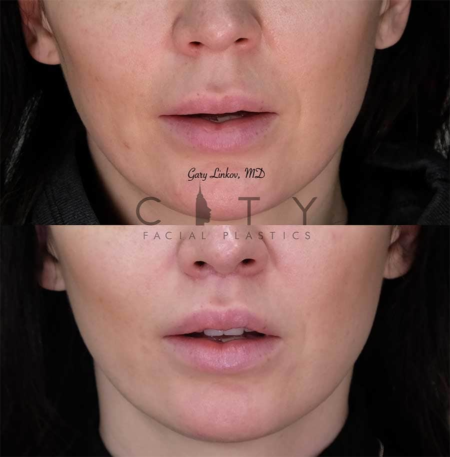 Lip Lift Case 7 | NYC Lip Augmentation, New York Cosmetic Lip Plastic Surgery