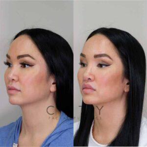 Lip Lift Case 8   NYC Lip Augmentation, New York Cosmetic Lip Plastic Surgery