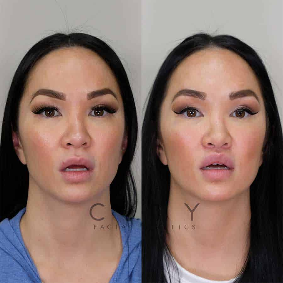 Lip Lift Case 8 | NYC Lip Augmentation, New York Cosmetic Lip Plastic Surgery