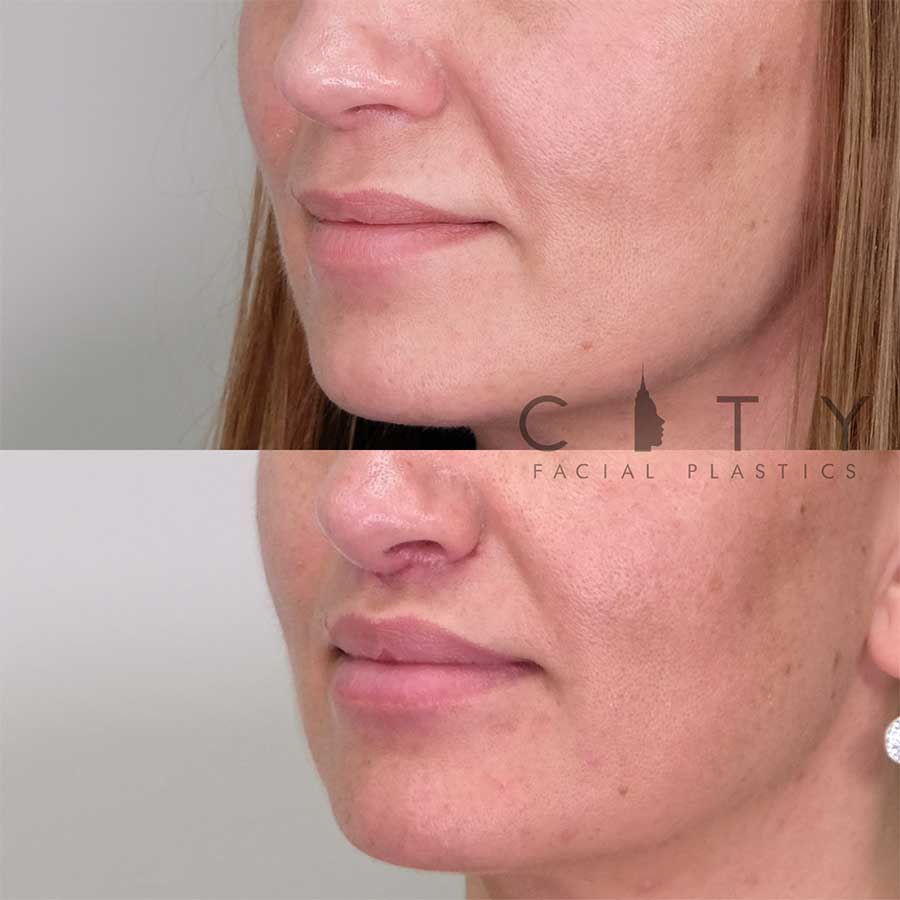 Lip Lift Case 9 | NYC Lip Augmentation, New York Cosmetic Lip Plastic Surgery
