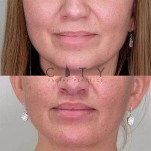 Lip Lift Case 9   NYC Lip Augmentation, New York Cosmetic Lip Plastic Surgery