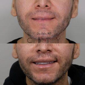 Lip lift 23 frontal smile