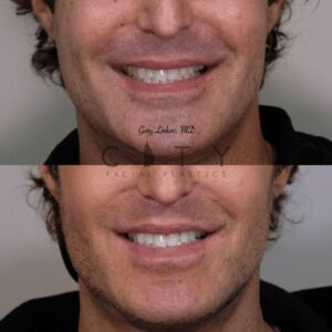 Lip lift 28 frontal smile
