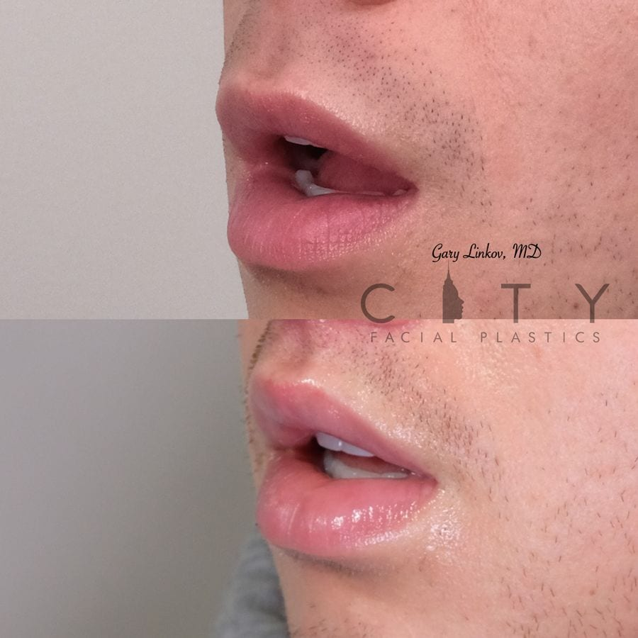 Lip Lift Upper East Side NYC