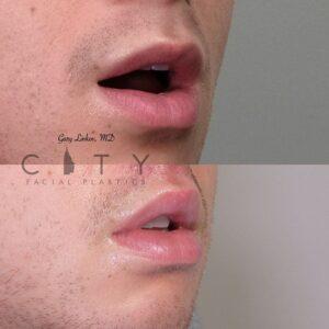 Lip Lift Upper East Side NYC