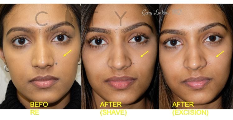 Mole Removal NYC | New York Facelift Specialist