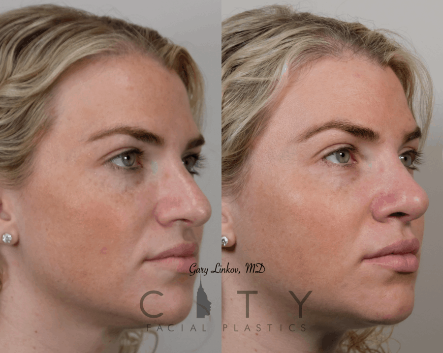 Revision rhinoplasty case 1 | NYC Facial Plastic Surgery