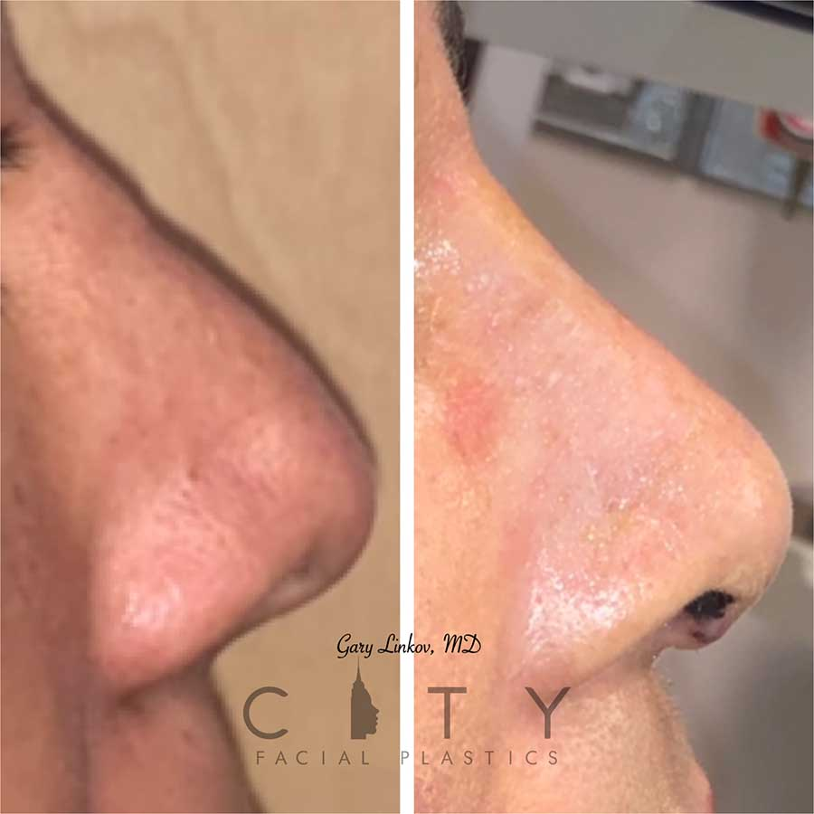 Revision rhinoplasty case 3 | NYC Facial Plastic Surgery