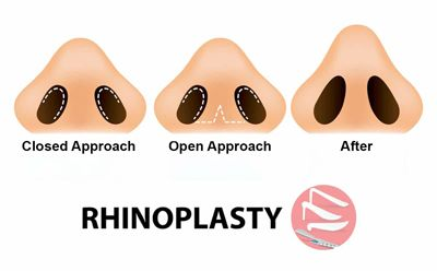 Types of Rhinoplasty | Rhinoplasty Surgery, Nose Job Surgeon