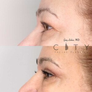 Blepharoplasty Case 1   NYC Upper/Lower Blepharoplasty, New York Eyelid Surgery