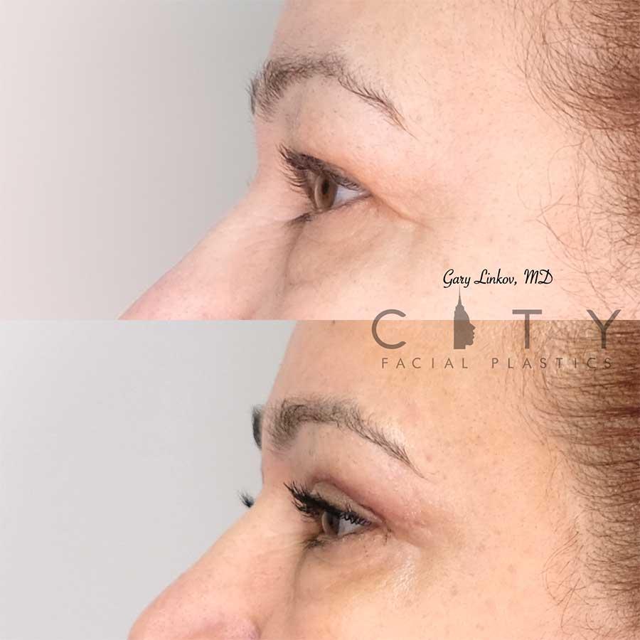Blepharoplasty Case 1 | NYC Upper/Lower Blepharoplasty, New York Eyelid Surgery
