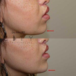 Chin augmentation Case 1 | NYC Chin Implants Surgery | New York Cosmetic Chin Augmentation