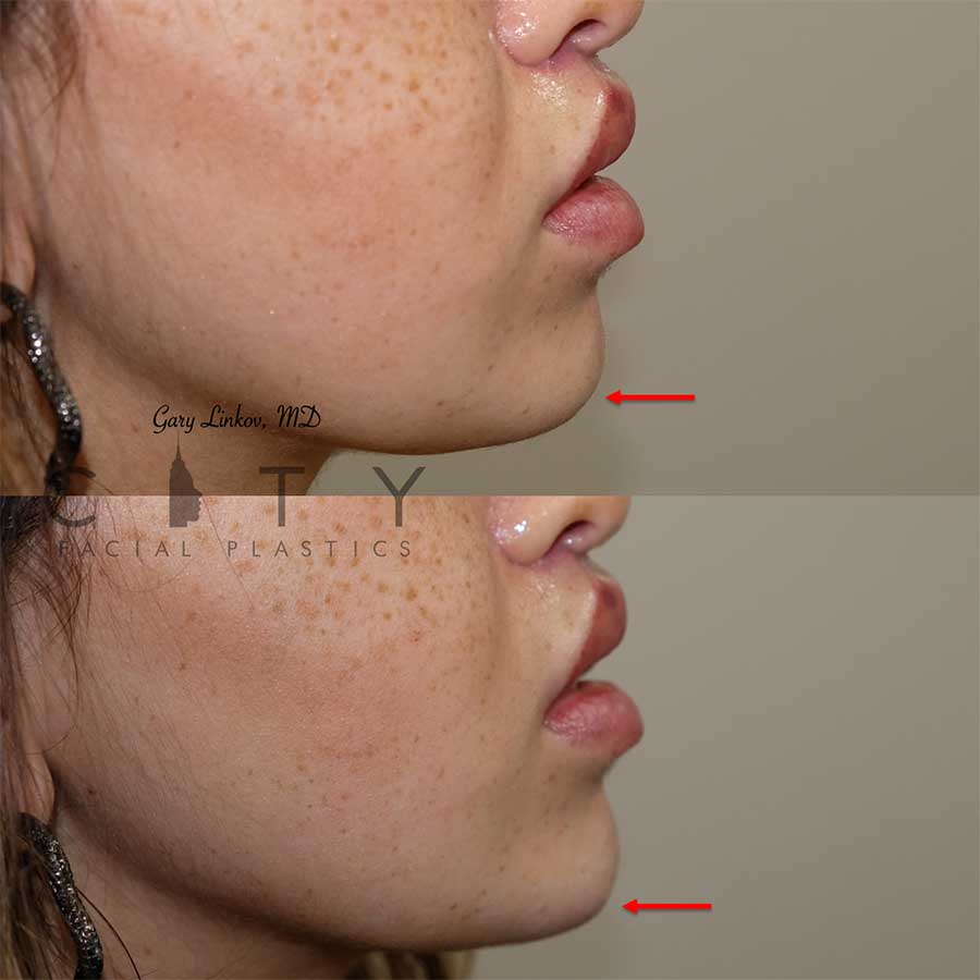 Chin augmentation Case 1 | NYC Chin Implants Surgery | New York Cosmetic Chin Augmentation