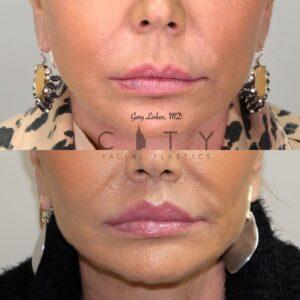 Elelyft Lip Lift Case 1   Elelyft Upper Lip Lift, Dr. Gary Linkov Facial Plastic Surgeon