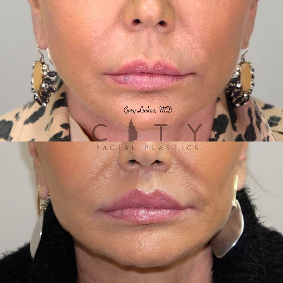 Elelyft Lip Lift Case 1 | Elelyft Upper Lip Lift, Dr. Gary Linkov Facial Plastic Surgeon