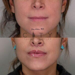 Elelyft Lip Lift Case 4   Elelyft Upper Lip Lift, Dr. Gary Linkov Facial Plastic Surgeon