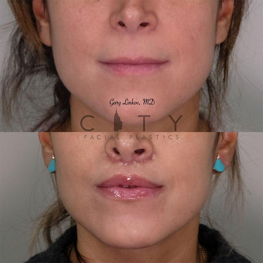 Elelyft Lip Lift Case 4 | Elelyft Upper Lip Lift, Dr. Gary Linkov Facial Plastic Surgeon
