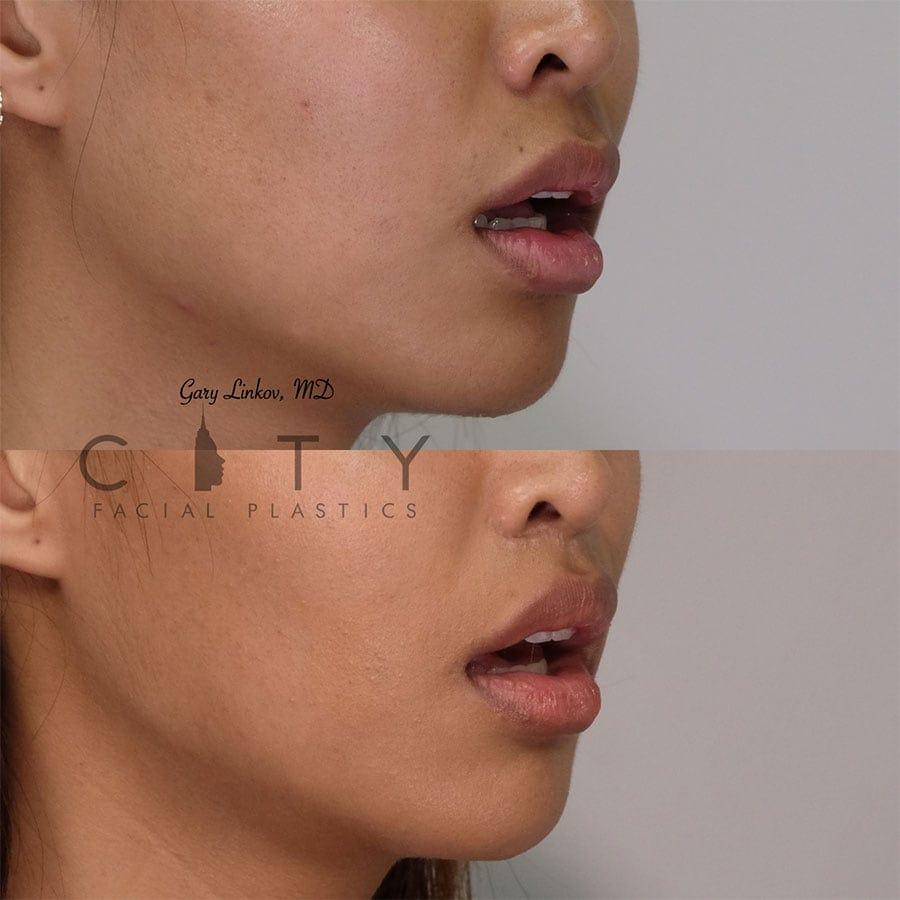 Elelyft Lip Lift Case 5 | Elelyft Upper Lip Lift, Dr. Gary Linkov Facial Plastic Surgeon